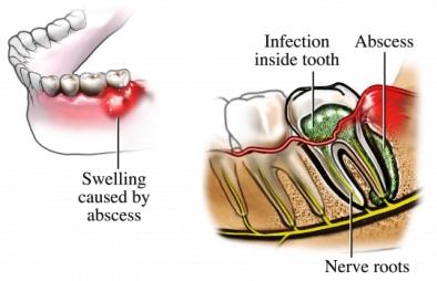 symptoms-dental-abscess-cats
